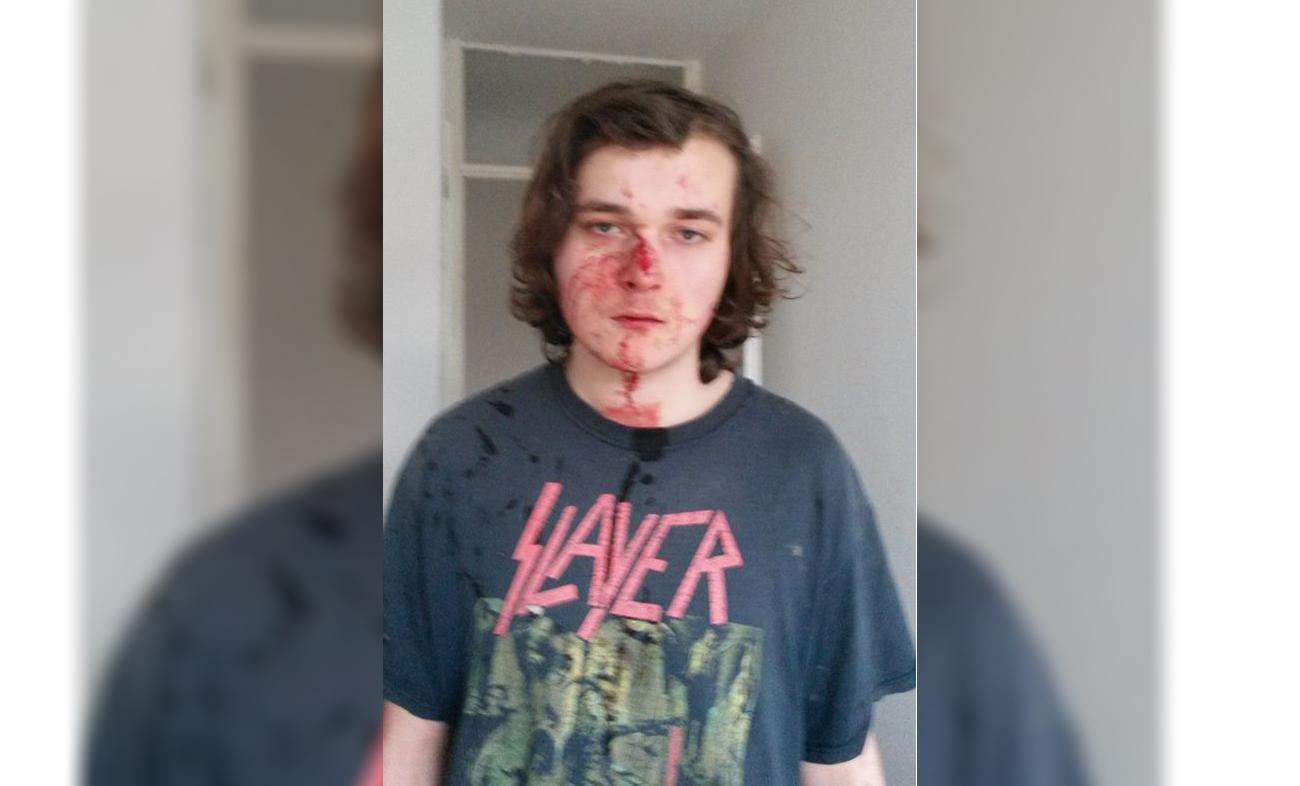 Jongen mishandeld na verzoek te stoppen met omgooien kliko's